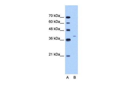 Rabbit Anti-Cytokeratin 13 Antibody