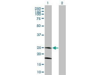 Mouse Anti-KCNMB4 Antibody