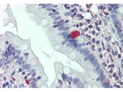 Rabbit Anti-C8orf55 Antibody