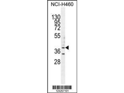 Rabbit Anti-B3GALT5, NT Antibody