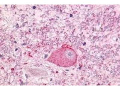 Rabbit Anti-NTSR1 Antibody