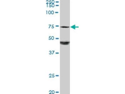 Galactosylceramidase / GALC Antibody