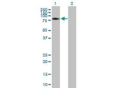 Rabbit Anti-RUNX1T1 Antibody