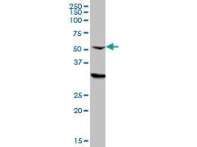 Mouse Anti-CPSF6 Antibody