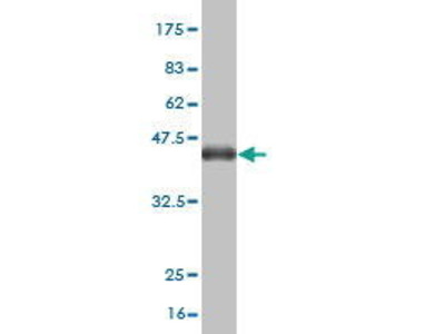 Mouse Anti-ADAMTS2 Antibody