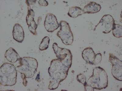 Mab Mo x human Cytokeratin, pan antibody