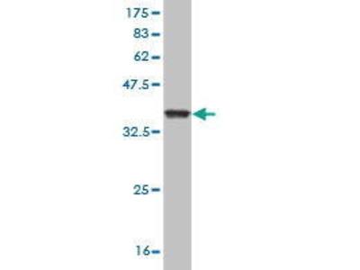 Mouse Anti-Granzyme M Antibody
