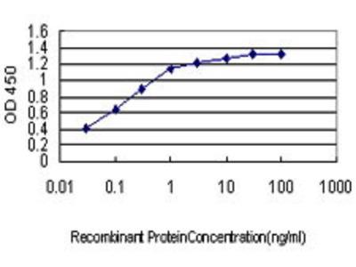 Mouse Anti-JPH1 Antibody