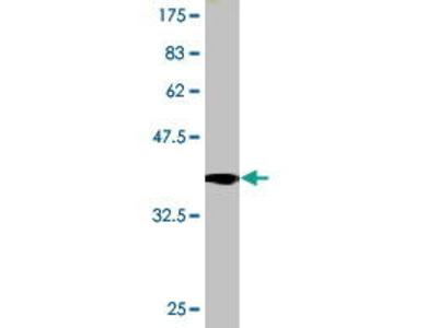 Mouse Anti-TRPA1 Antibody