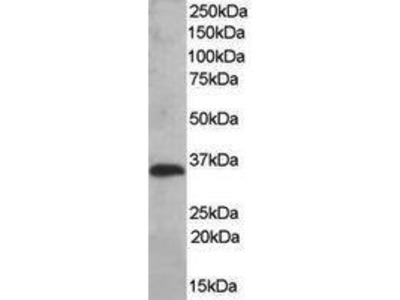 Goat Anti-TMX1 Antibody