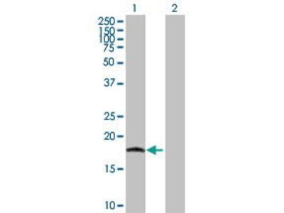 Mouse Anti-IL17C Antibody