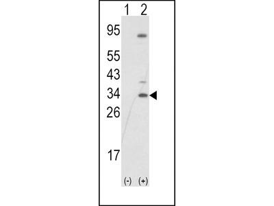 Pab Rb x human SNAIL, NT (R8) (Zinc Finger Protein SNAI1, Protein Snail Homolog 1, Protein sna, SNAI1, SNAH antibody