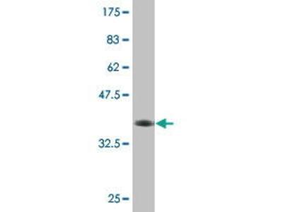 Mouse Anti-ABCC11 Antibody