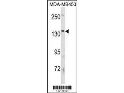 Rabbit Anti-ATP8B3, NT Antibody