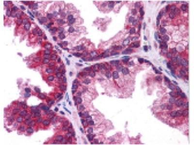 Rabbit Anti-TMEM38B, CT Antibody
