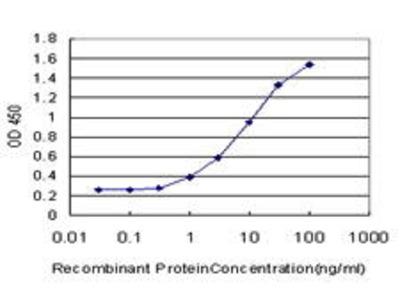 Mouse Anti-CYP1B1 Antibody