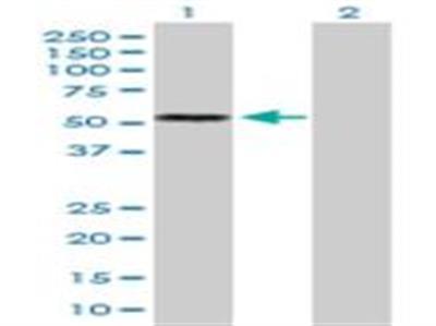 IL-13R alpha 2 Antibody