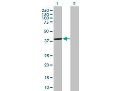 Mouse Anti-BCL2L12 Antibody