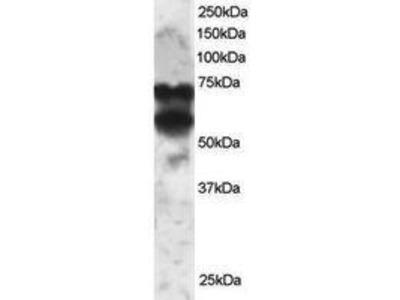 Goat Anti-PPP2R5D Antibody