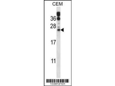 Rabbit Anti-RAB6B, CT Antibody