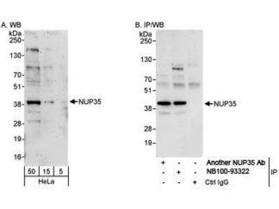 Rabbit Anti-Nucleoporin 35kDa Antibody