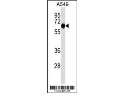 Rabbit Anti-ALPPL2, NT Antibody