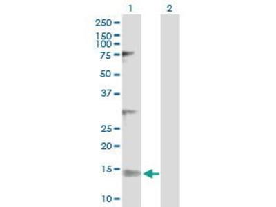 Rabbit Anti-NDUFV3 Antibody