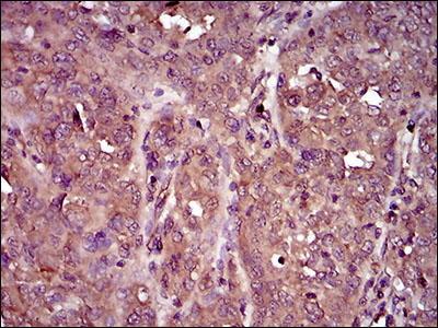 Mouse Anti-IL3RA Antibody