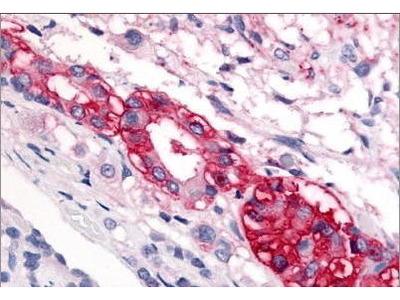 Rabbit Anti-CRFR1 Antibody