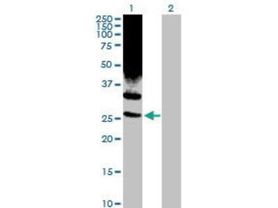 Rabbit Anti-PSMD10 Antibody