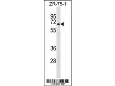 Rabbit Anti-SGK071, CT Antibody