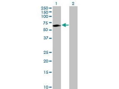 Rabbit Anti-Transcobalamin 1 Antibody