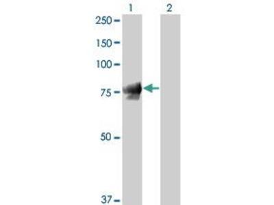 Mouse Anti-CTNNG Antibody