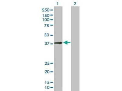Mouse Anti-SUCLG2 Antibody