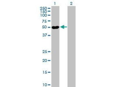 Mouse Anti-POLR1E Antibody