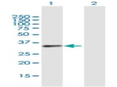 BCAT1 Antibody