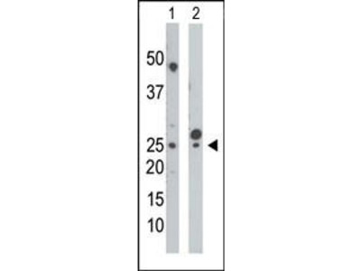 Rabbit Anti-Uridine Monophosphate Kinase 1, NT Antibody