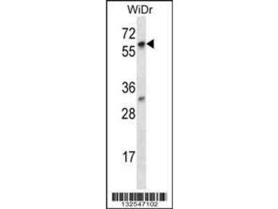 Rabbit Anti-LARP7, CT Antibody