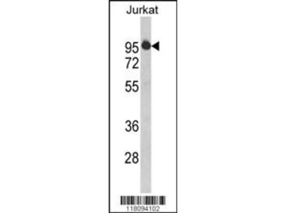 Rabbit Anti-HIV-1 Tat Specific Factor 1, NT Antibody