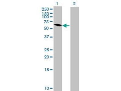 Mouse Anti-MAGEB6 Antibody