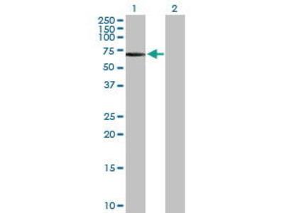 Rabbit Anti-FGR Antibody