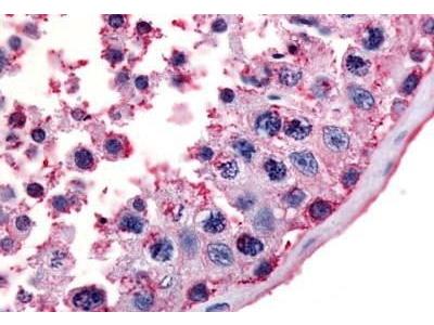 Rabbit Anti-MC5 Receptor Antibody