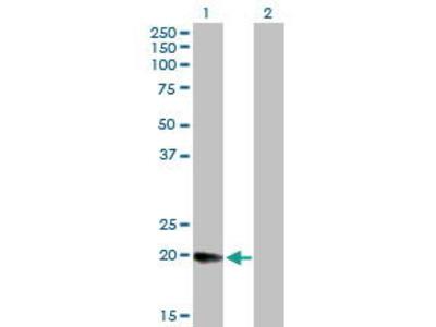 Mouse Anti-DHRS11 Antibody