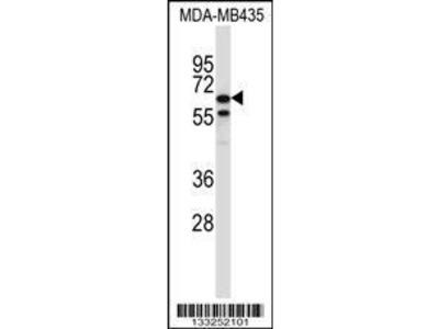 Rabbit Anti-TRIM39, ID Antibody