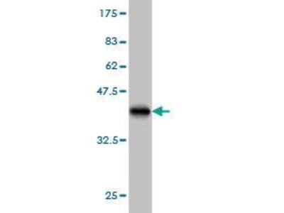 Mouse Anti-PUM2 Antibody