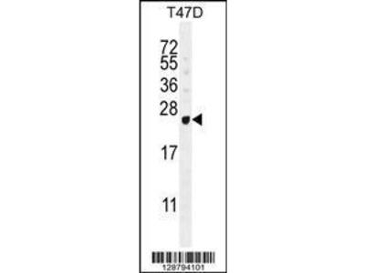 Rabbit Anti-GAGE12B, NT Antibody