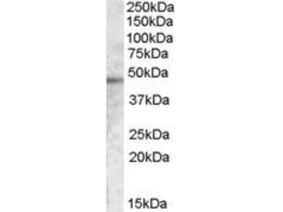 Goat Anti-TMPRSS3 Antibody