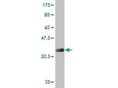 Mouse Anti-ATP11B Antibody