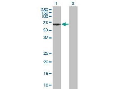 Rabbit Anti-CHRND Antibody