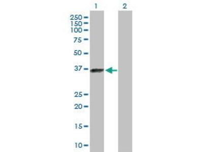 Rabbit Anti-ELAVL3 Antibody